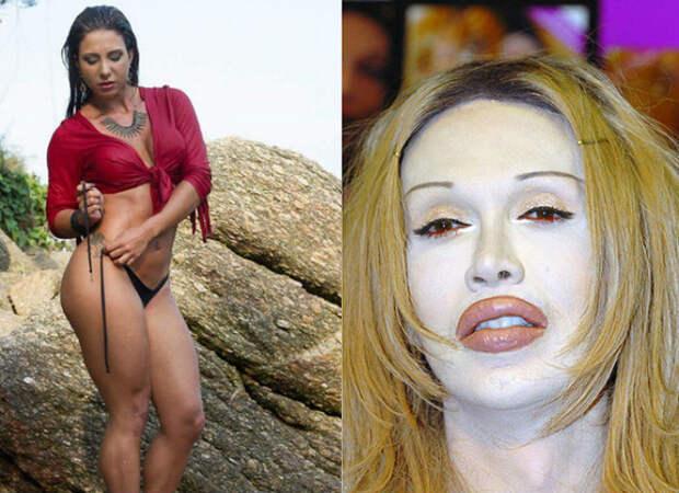 Красота требует: 8 жертв пластической хирургии