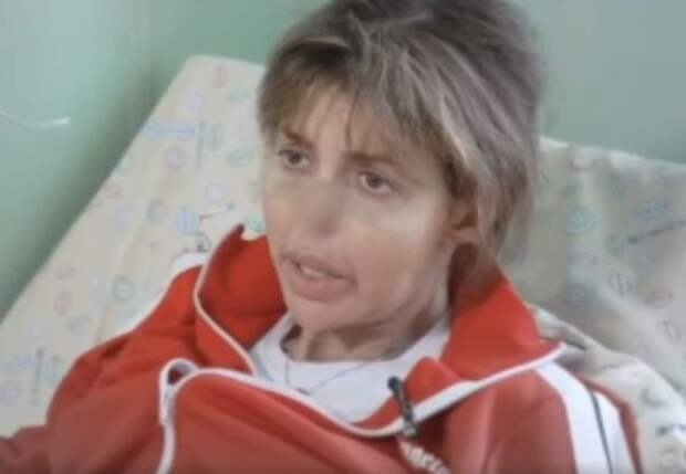 Алиса Аршавина выступила на ТВ и шокировала зрителей провалившимся носом