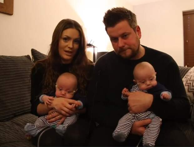 Джо и Эши — самые маленькие близнецы в мире, которые родились с общим весом 832 грамма