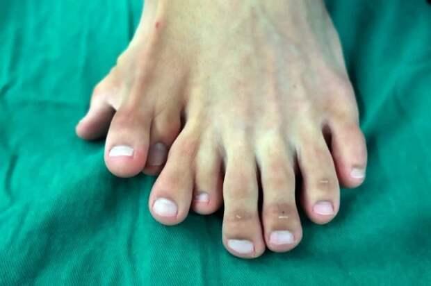 Счастья много небывает: китаец долго жил с14 пальцами наногах, считая аномалию счастливым знаком