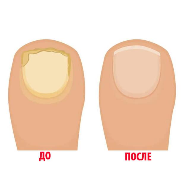 Как избавиться от грибка ногтей дешево и быстро