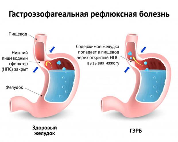 Изжога: симптомы, причины и лечение в домашних условиях