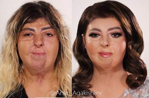 Стилист из Баку помогает девушкам с изъянами почувствовать себя прекрасными: 7 преображений