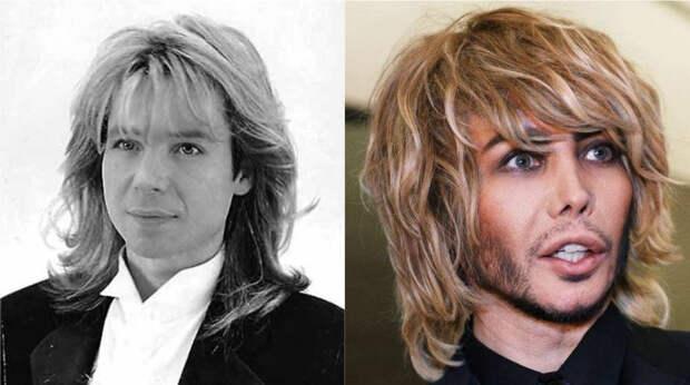 До и после: 6 известных мужчин России, увлекшихся пластикой
