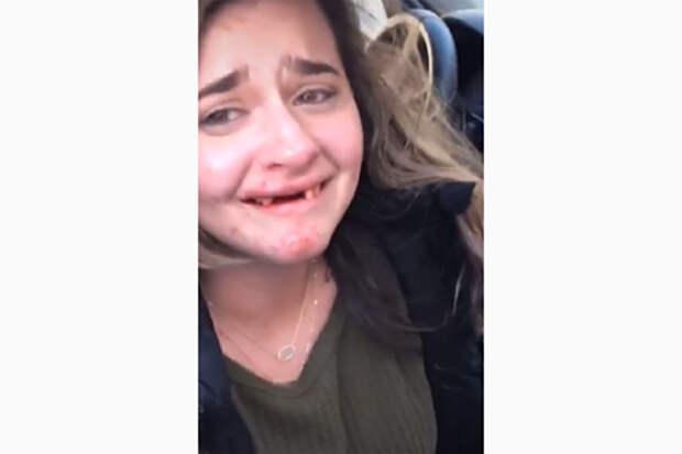 Девушка похвасталась количеством выпитых коктейлей и потеряла передние зубы
