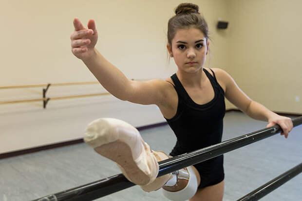 Танцовщица с ампутированной ногой