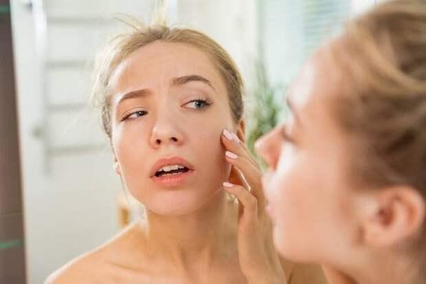 Как избежать воспалений на жирной чувствительной коже лица