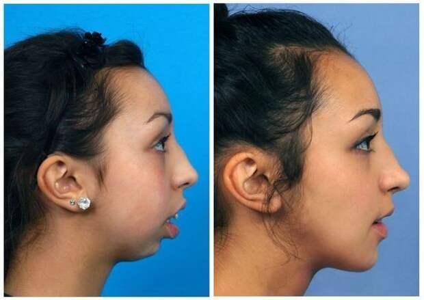 Невероятное преображение девушки после пластической коррекции челюсти зубы, преображение, челюсть