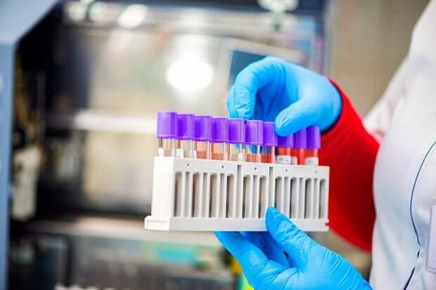 Коронавирусом на Кубани заразились 172 человека