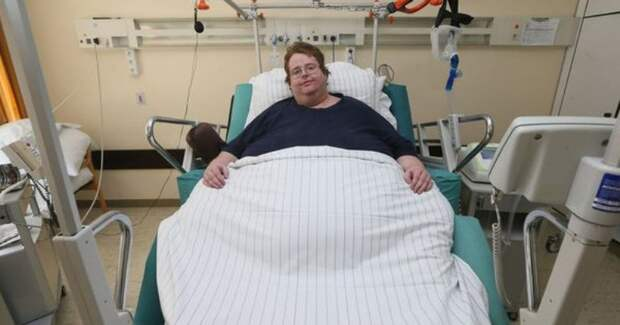 В США мужчине с ожирением случайно сделали кесарево сечение