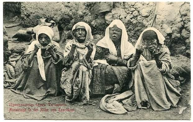 История проказы: почему человечество обуздало, нонепобедило «ленивую смерть»