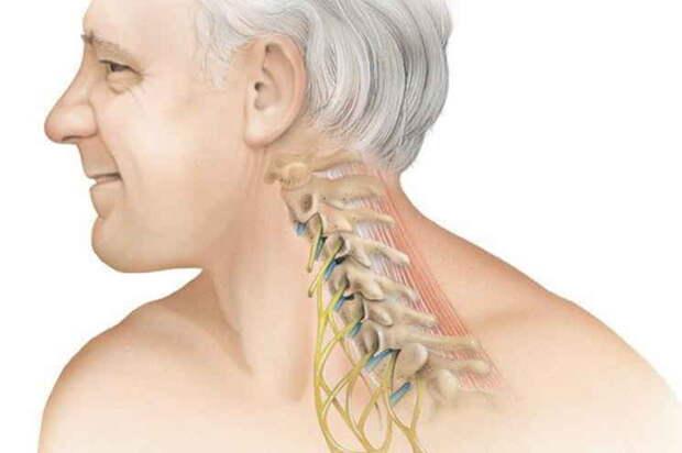 Шеей надо вертеть! Как без боли вылечить остеохондроз: точка иммунитета и правильная подушка