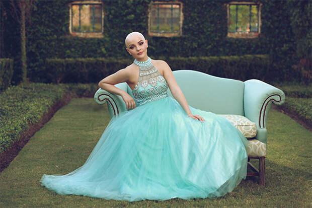 17-летняя школьница: «Рак не помешает мне быть принцессой» болезнь, принцесса, рак