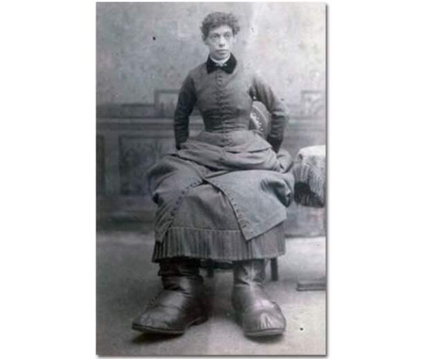 10. Фанни Милс с огромными ступнями интересное, история, странное, фотография
