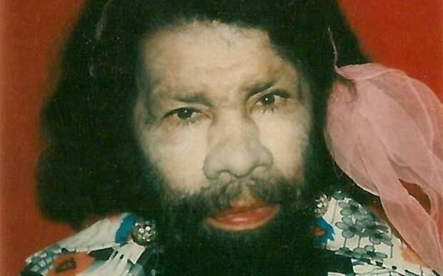 Перцилла «Девочка-обезьянка» В 1911 году родилась Перцилла Лаутер, чье полностью покрытое волосами тело и два ряда зубов сильно озадачили ее родителей. Они забрали ее из Пуэрто-Рико в Соединенные Штаты, где надеялись получить помощь от светочей медицины. Однако в Нью-Йорке им пришла блестящая, но, увы, не новая идея выставлять свою дочь напоказ за звонкую монету. В конце концов, Девочка-обезьянка стала частью циркового шоу уродцев и даже вышла замуж за другого циркового артиста Эммитта Бежано, известного как «Человек-крокодил».
