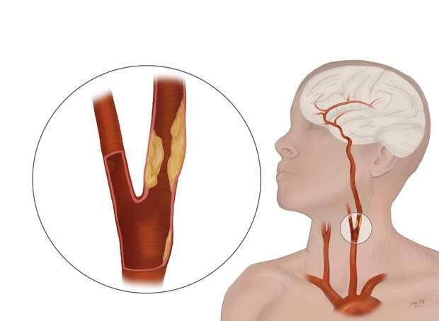 делаем УЗИ сонных артерий