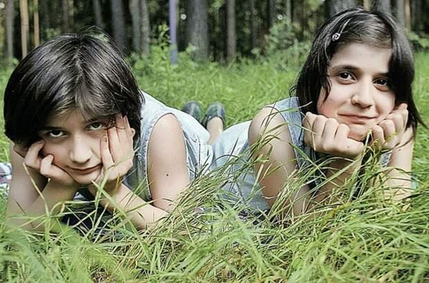 Истории жизни сиамских близнецов