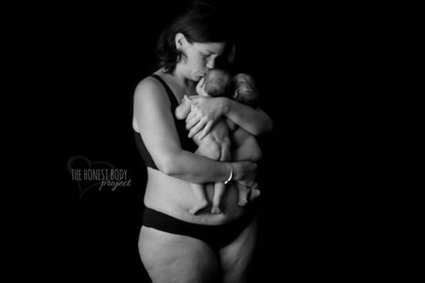 Откровенный фотопроект: как насамом деле выглядят женщины после родов