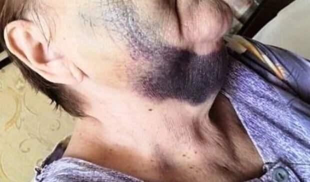 «Ворвался в квартиру, всё в гематомах»: в Приморье разбираются в зверском нападении
