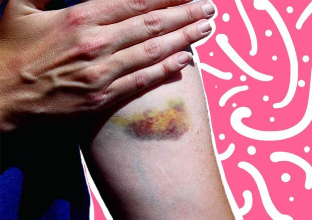 Как убрать синяк на руке: скорая помощь красивой коже