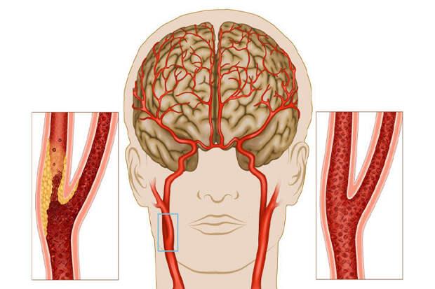 сонные артерии - важные сосуды в организме человека