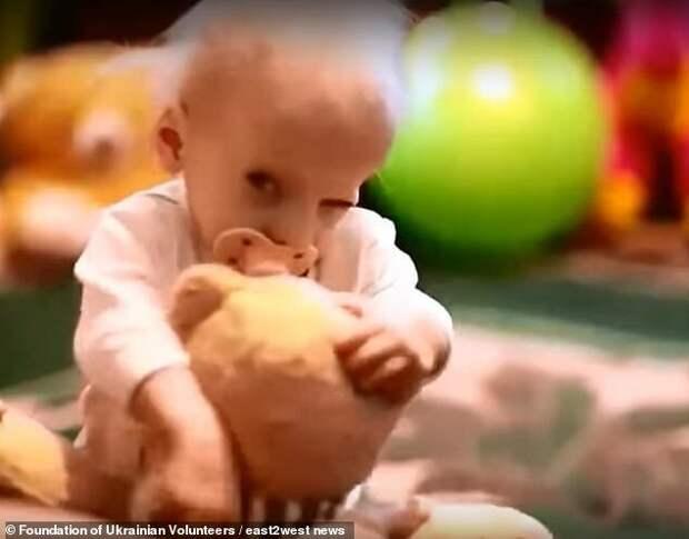 Почему украинка умерла от старости в 8 лет