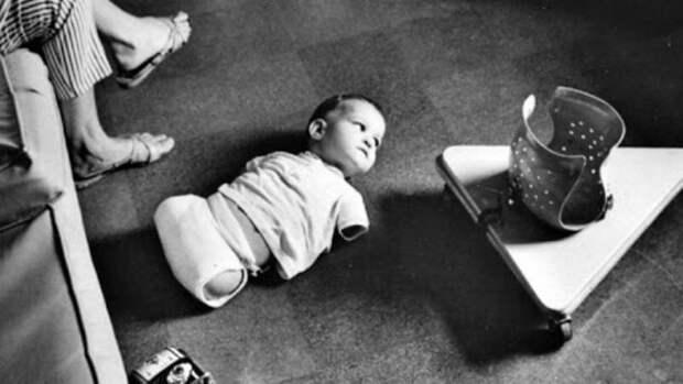 Осторожней с препаратами. Как лекарство, созданное для помощи беременным, сделал калеками десятки тысяч людей! Грустная история прошлого века