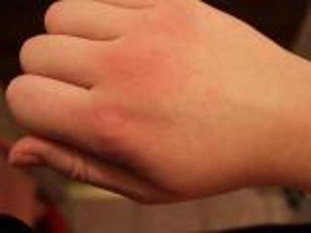 Как вылечить цыпки на руках