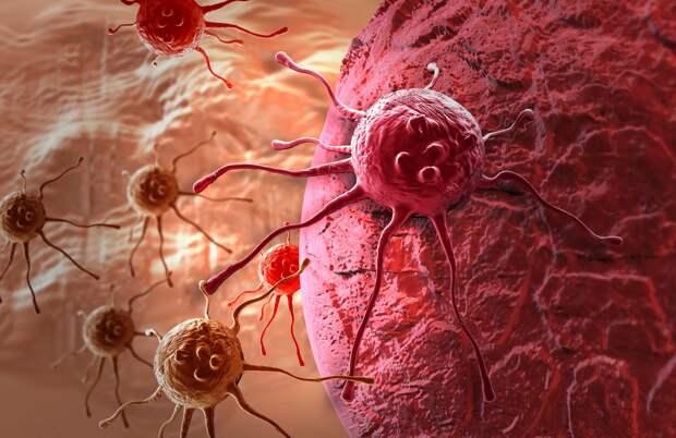 Это важно знать: Как начинается и распространяется рак? Какие бывают типы опухолей?