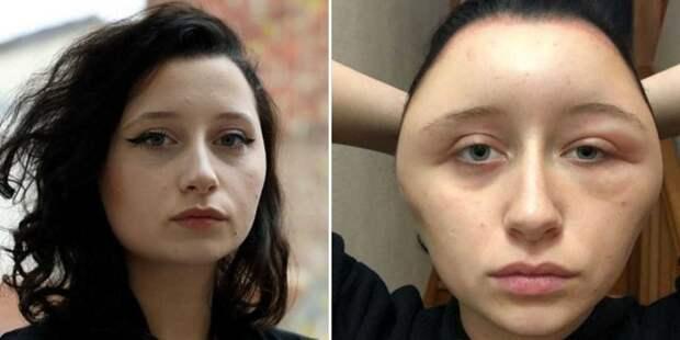 """Аллергия на краску для волос превратила студентку в """"лампочку"""" аллергия, в мире, история, краска, лампочка, люди, реакция"""