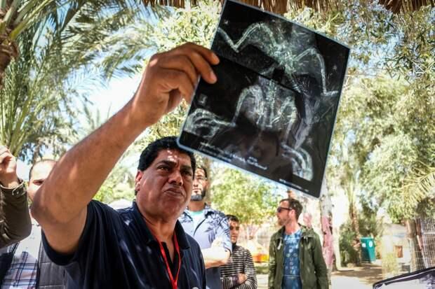 47 истощенных животных спасли из зоопарка Газы