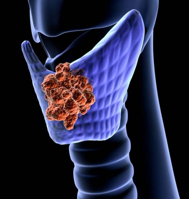8 золотых правил для здоровья щитовидной железы