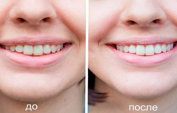 осветвление зубов