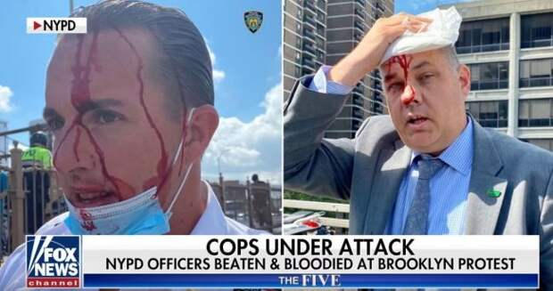Ведущий Fox News: Наше положение безнадежно