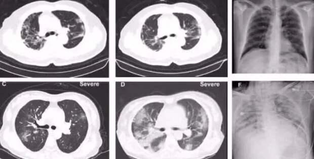 Китай опубликовал первые результаты вскрытия пациента, умершего от коронавируса