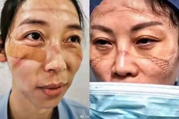 Как выглядят лица китайских врачей в конце рабочей смены