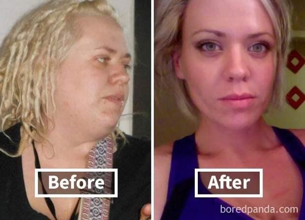 Удивительные фото до и после похудения, показывающие, как потеря веса меняет лицо