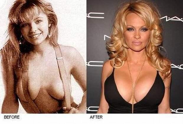 Милая и скромная брюнетка: Памела Андерсон до пластических операций выглядела совсем иначе