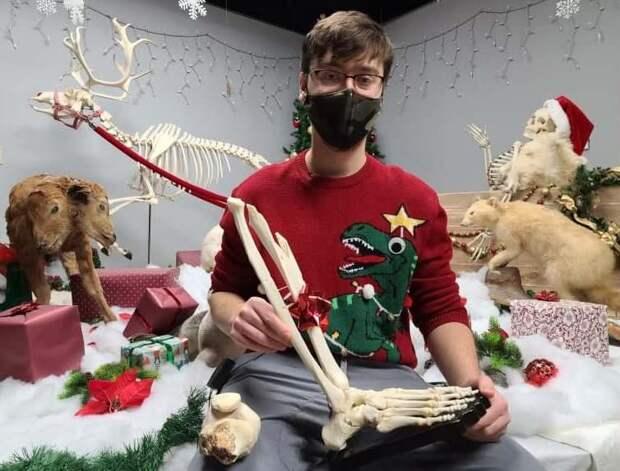 Парень изКанады получил вподарок наРождество собственную ногу
