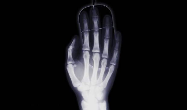 Мобильный рентген за3,4млн планирует приобрести ГБ№4 наТагилстрое вНижнем Тагиле