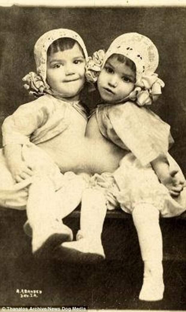 Гваделупа и Джозефина Инохоса были известны как Кубинские близняшки. Фотография сделана в 1914 году: «шоу уродов» в цирке процветали и в XX веке деформация, люди