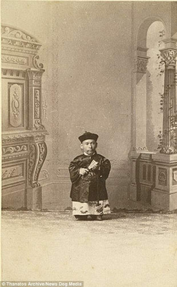 Человек, известный как Китайский карлик, был ростом 71 см и весил 18 кг деформация, люди