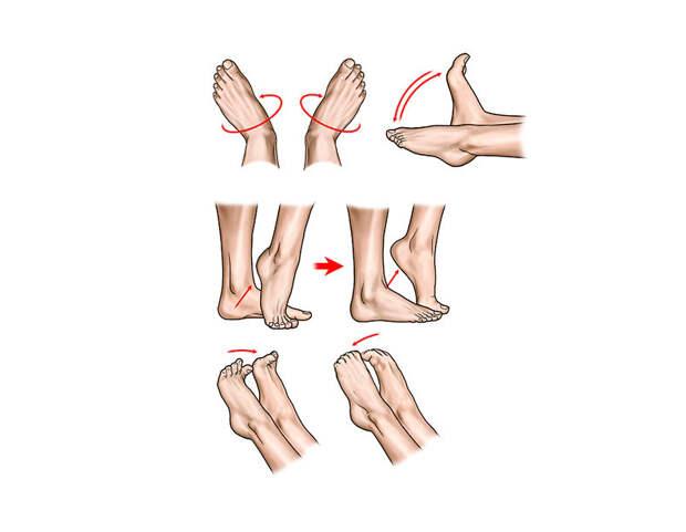 5 причин тромбоза и специальные упражнения