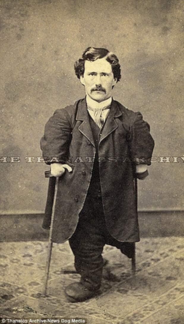 Суровый XIX век: коллекция архивных фотографий людей с деформациями деформация, люди