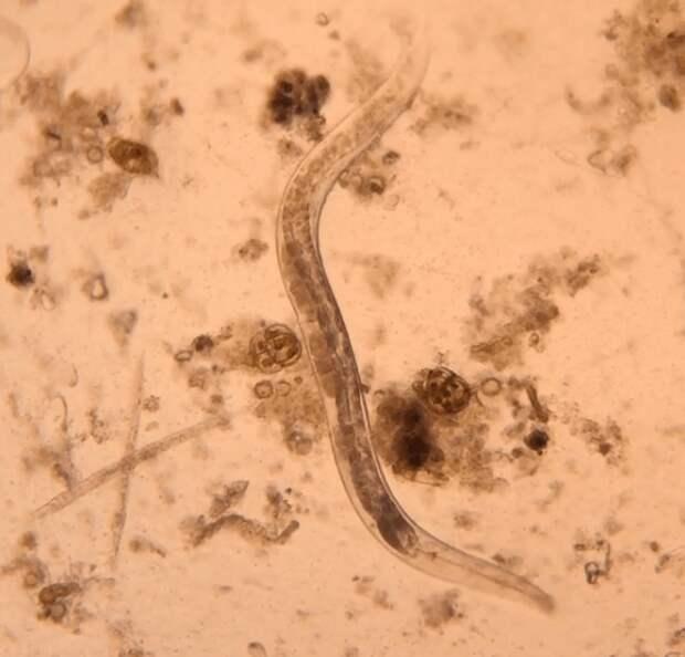 А некоторые товарищи — паразиты в прямом смысле слова в мире, интересно, под микроскопом, познавательно, фото