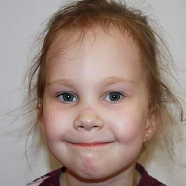 Валя Черенева, 7 лет, редкое генетическое заболевание – первичный иммунодефицит, спасут лекарства, 153860₽
