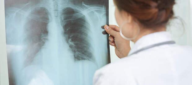 Как человек понимает, что у него туберкулез? Фтизиатр Анна Белозерова — о сложных  случаях и пробе Манту | Православие и мир