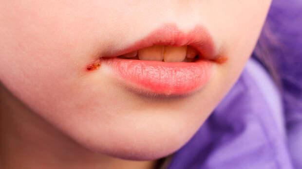 Заболевания, которые передаются через поцелуй