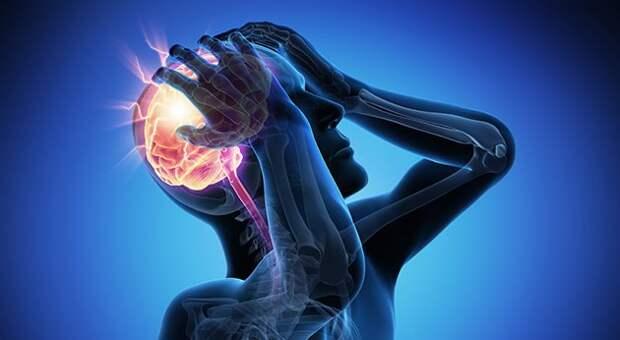 Что такое микроинсульт? Признаки и отличия от инсульта