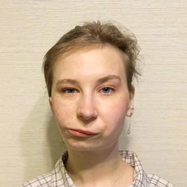 Лиза Панкратова, 16 лет, врожденная деформация челюстей, скученное положение зубов, требуется ортодонтическое лечение, 223536₽